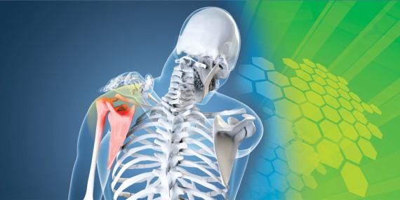 Arthritis Pain Shoulder
